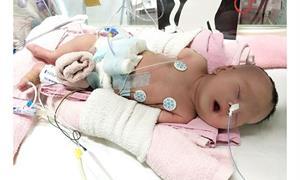 疫見奇蹟!2歲10公斤小妹妹罹末期腎臟病,完成腎臟移植手術