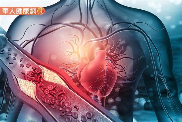 有高膽固醇、肥胖、糖尿病的族群,由於血管內皮可能因爲粥狀動脈硬化、血管糖化等原因受到損害,須特別注意高血壓的發生。